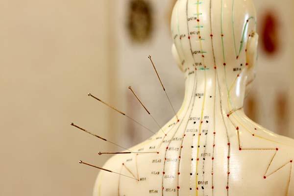 Agopuntura: origini di un'arte olistica che cura